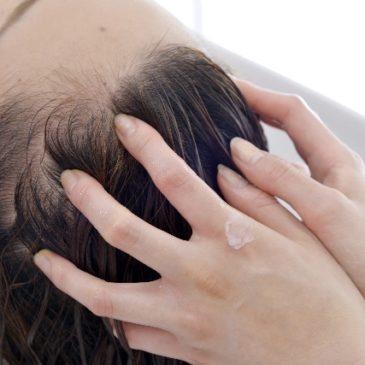 抜け毛・薄毛の原因と対策