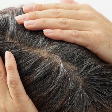 【抜くとハゲる】白髪を抜くことで薄毛の原因になる理由